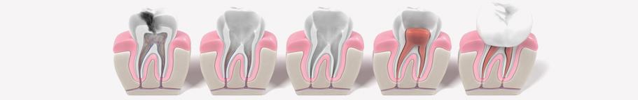 Endodontie - Traitements de Canal